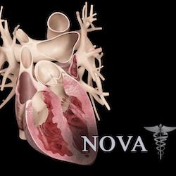 Heart Pro III for Mac v3.0 英文破解版 3D心脏模型软件